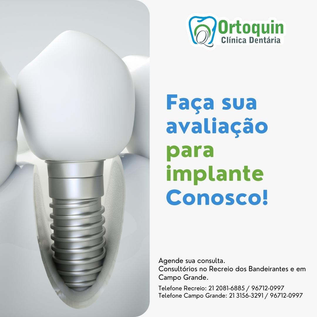 Ortoquin, clínica odontológica, dentista no recreio dos Bandeirantes e Campo Grande